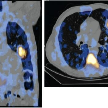Coronal and transaxial overlaid SPECT CT image